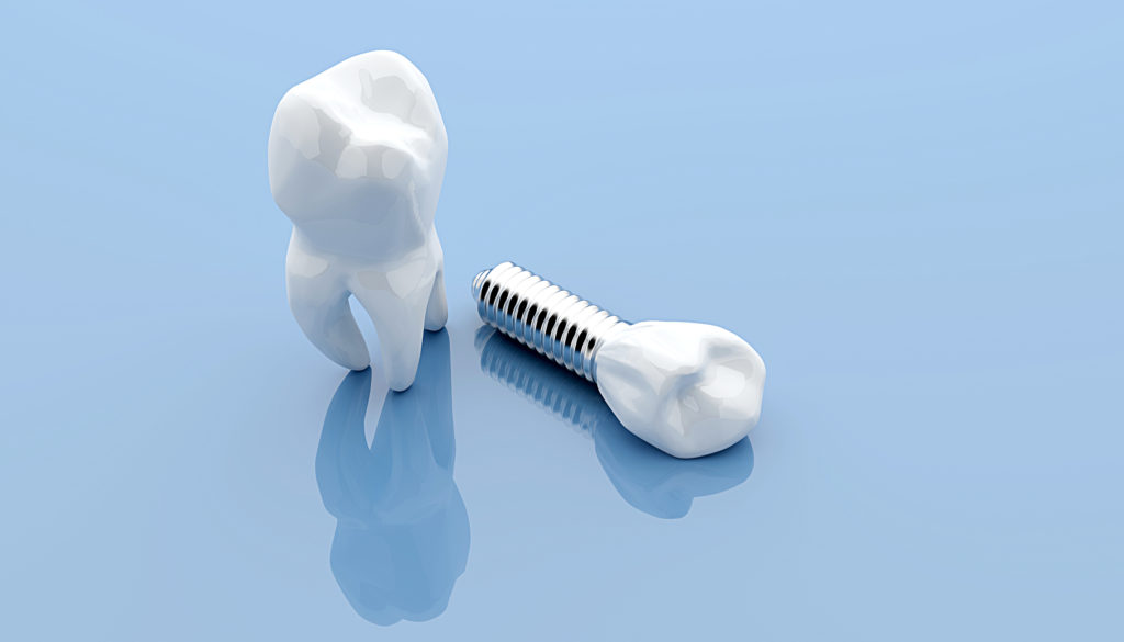 General dentistry dental implants